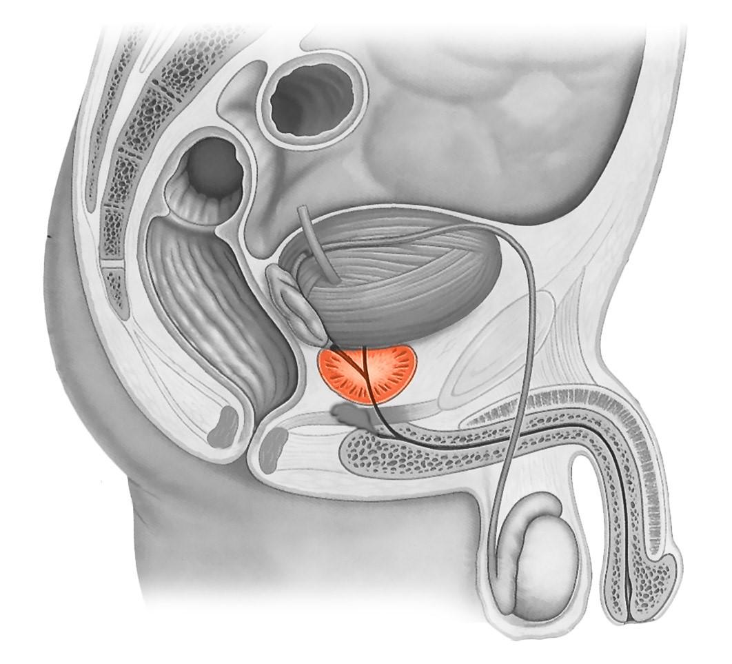 Простатит по женский лечение простатита дмитров